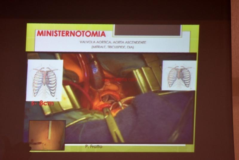 Cardiochirurgia073