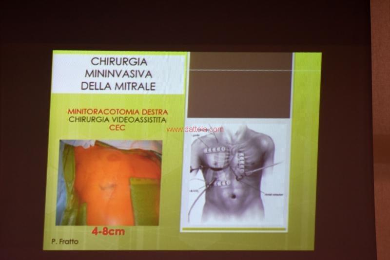 Cardiochirurgia076
